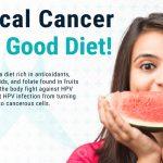 Cervical Cancer Diet